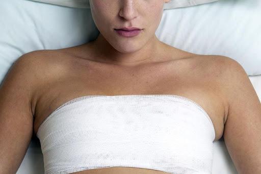 lipofilling mammaire raté